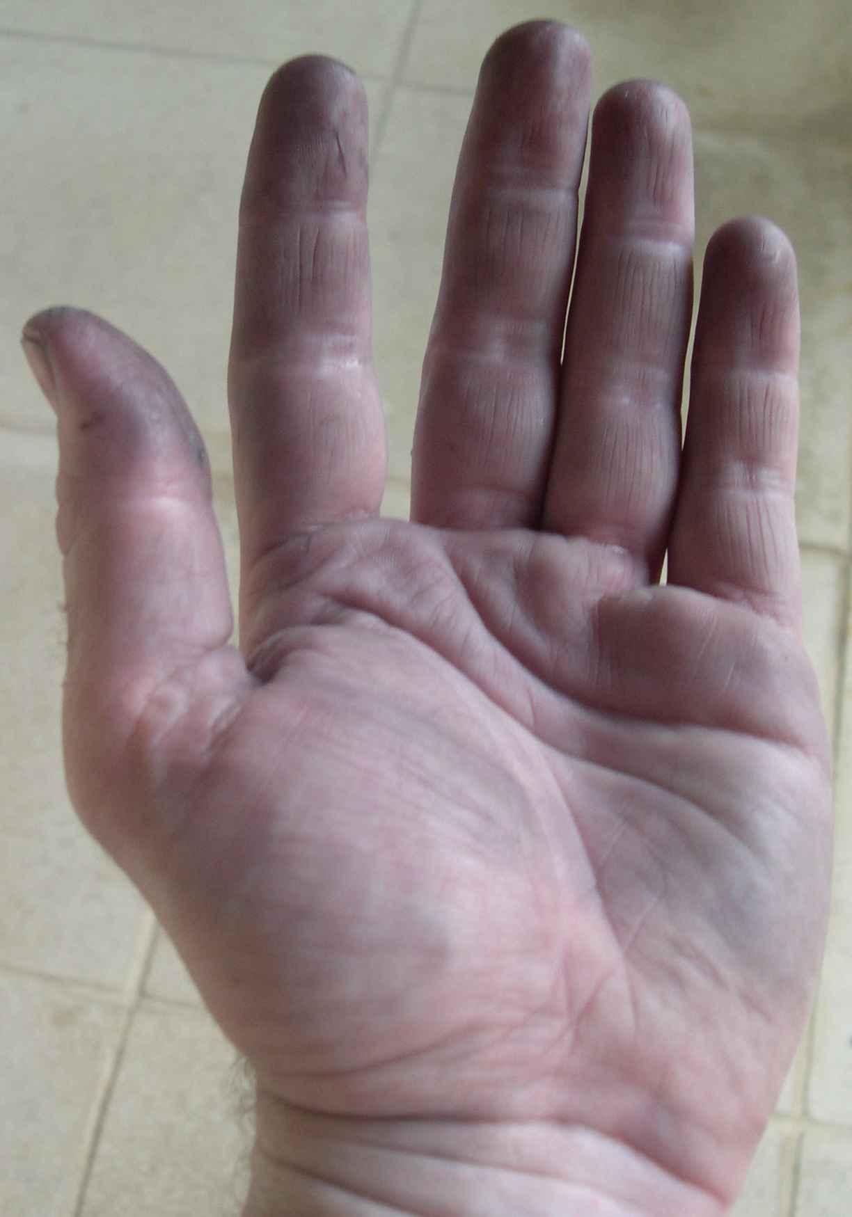 Kellermeisterhände nach Seifenreinigung