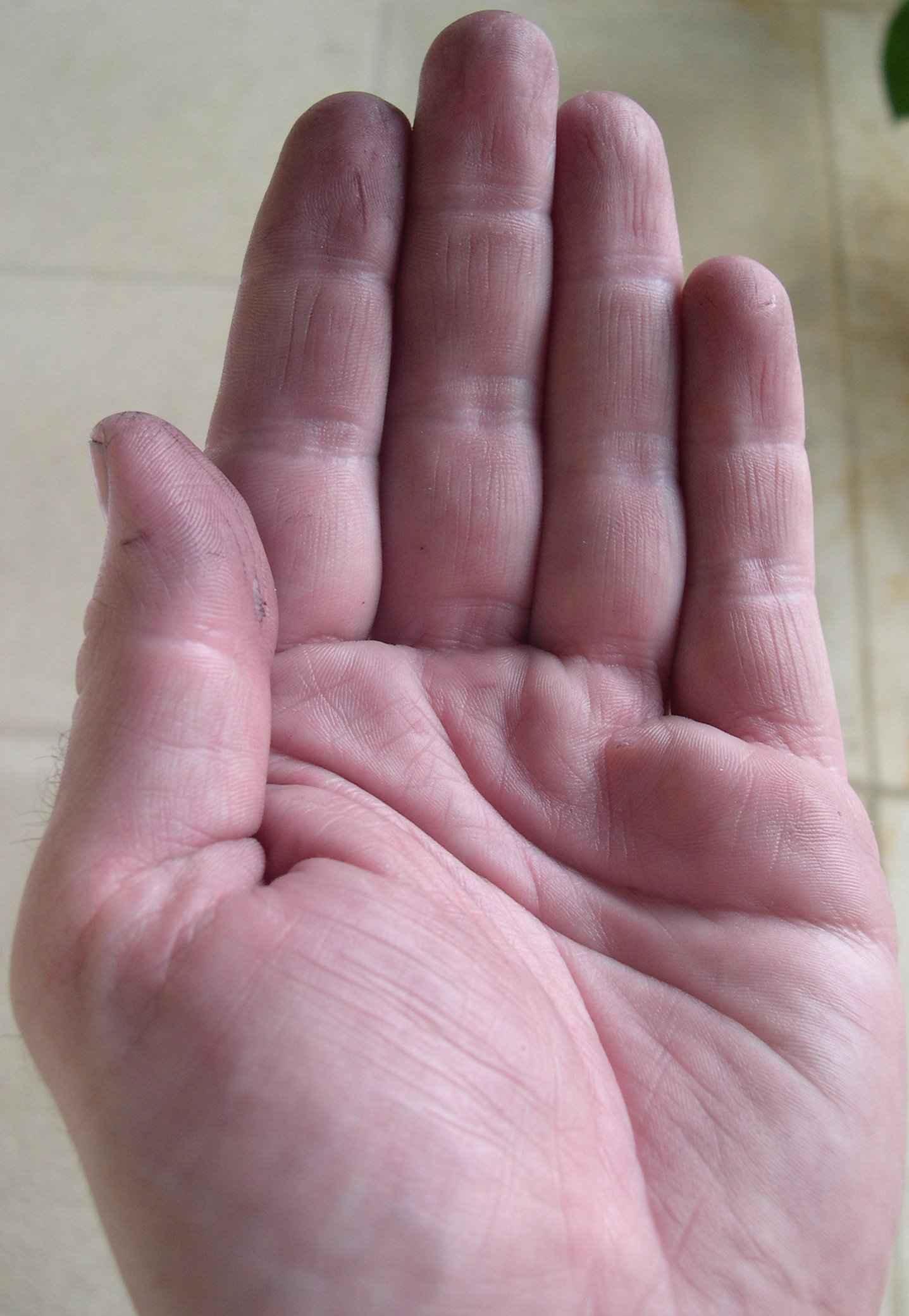 Kellermeisterhände nach Zitronensäure